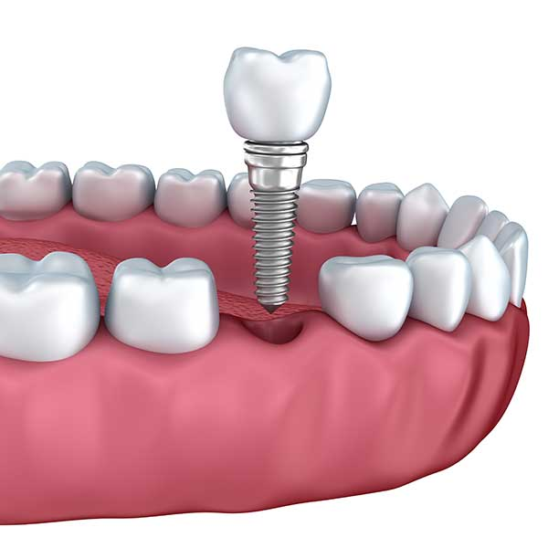 Dental Implants | Montgomery Dental Centre | NW Calgary | Family and General Dentist