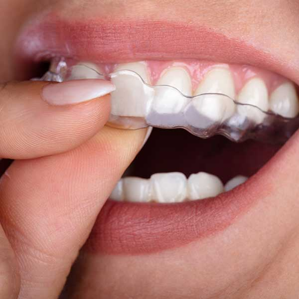 Invisalign | Clear Aligners | Montgomery Dental Centre | NW Calgary | Family and General Dentist