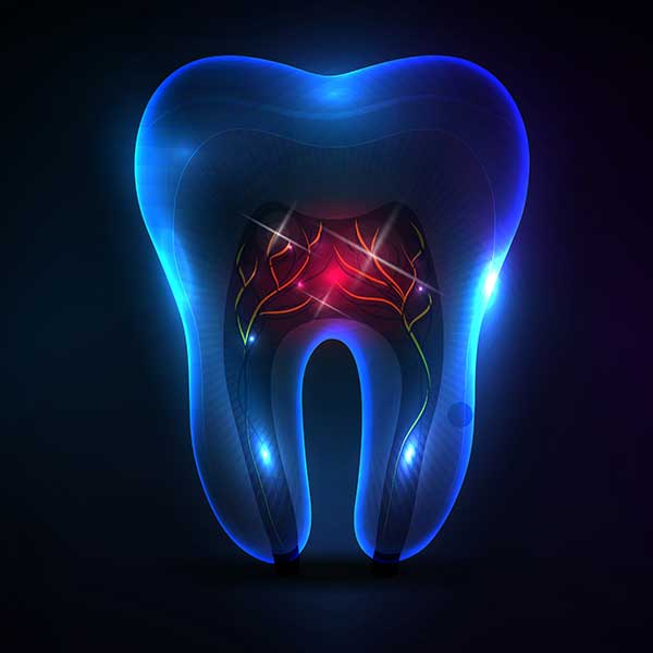 Root Canal Therapy | Montgomery Dental Centre | NW Calgary | Family and General Dentist