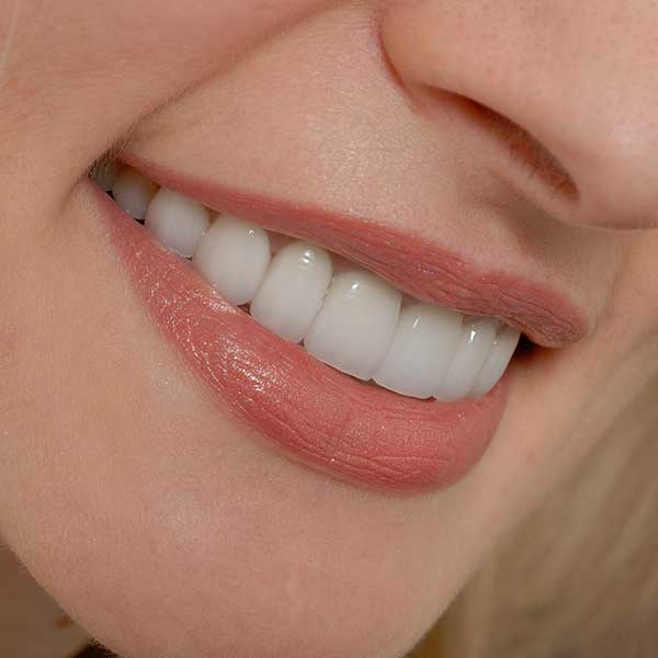 Porcelain Veneers | Montgomery Dental Centre | NW Calgary | Family and General Dentist