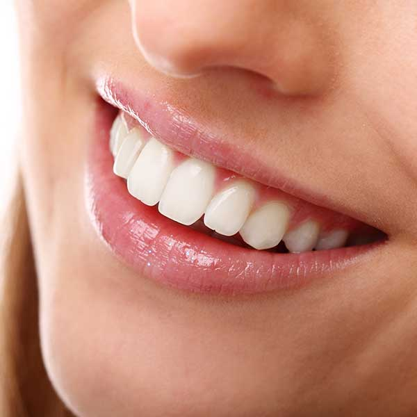 Teeth Whitening | Montgomery Dental Centre | NW Calgary | Family and General Dentist