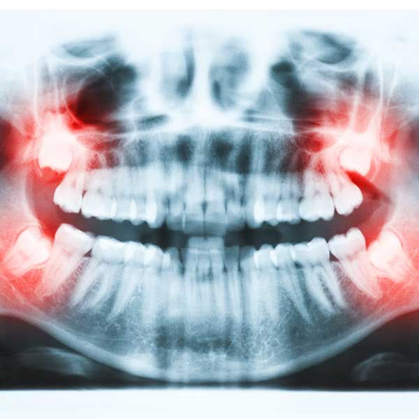 Wisdom Teeth Removal | Montgomery Dental Centre | NW Calgary | Family and General Dentist